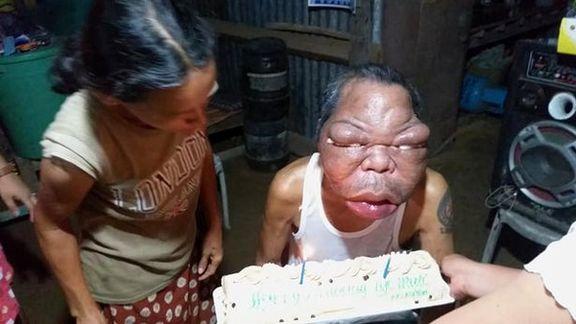بیماری عجیبی که یک فرد فیلیپینی دچار آن شده است + فیلم