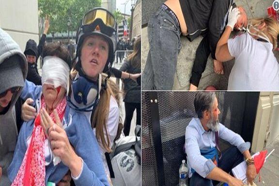 درگیری شدید پلیس با معترضان فرانسوی/ ۱۴ نفر زخمی شدند