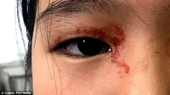 دختری که خون عرق می کند!