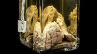 با ترسناکترین موزه جهان آشنا شوید/موزه ماتر ترسناکترین موزه در جهان