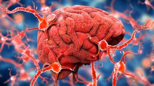 کشف دارویی برای درمان آلزایمر