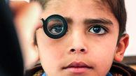 بینایی سنجی کودکان پیش دبستانی با پروتکل های بهداشتی
